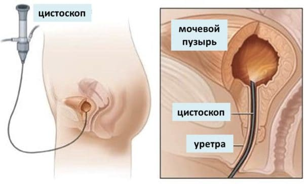 инстилляция при цистите санирующими растворами