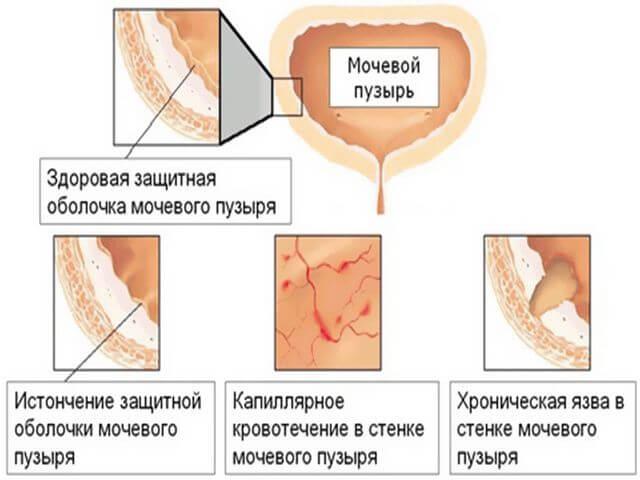 Цистит после лучевой терапии причины признаки симптомы лечение