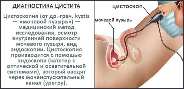 диагностика цистита