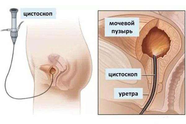Инстилляция мочевого пузыря