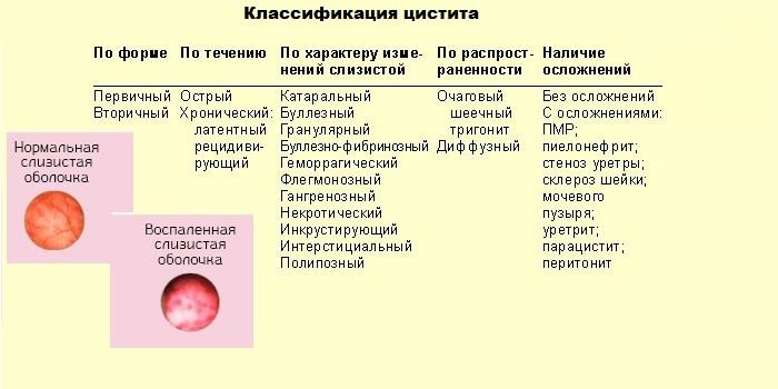 признаки хронического цистита