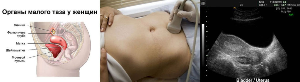 УЗИ органов малого таза