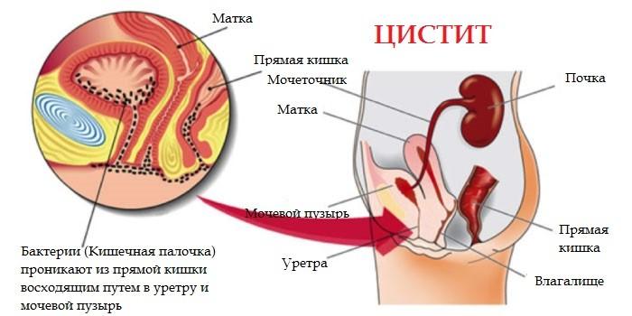 патология мочевого пузыря