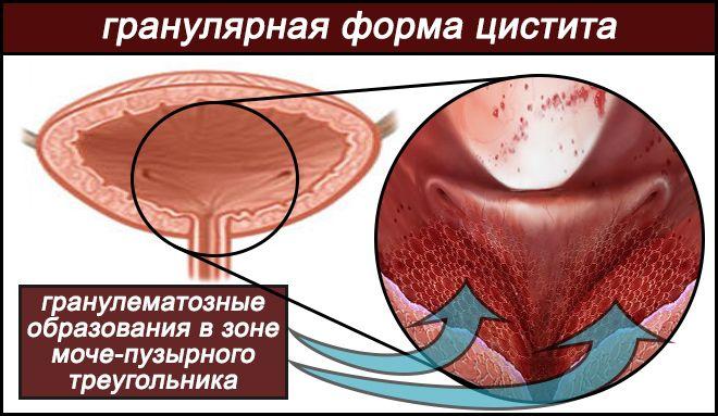 Гранулярная форма цистита